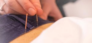 Dry Needle Treatment and Acupuncture Treatment